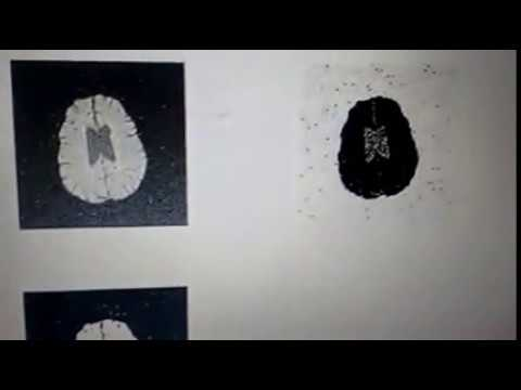 Brain tumour segmentation using CUCKOO search