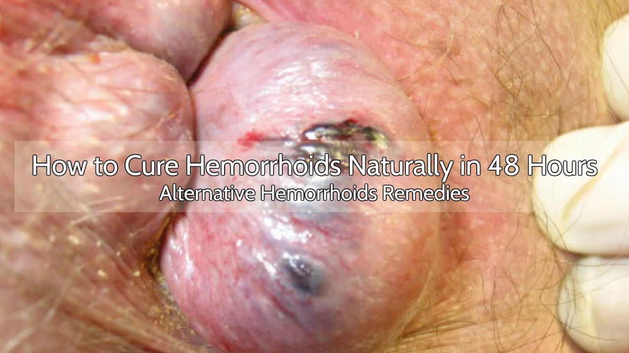 how to make external hemorrhoids disappear