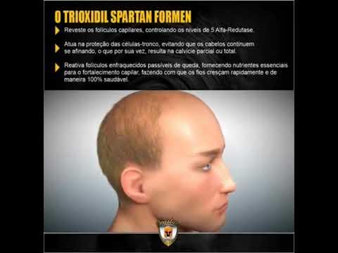 trioxidil spartan reclame aqui