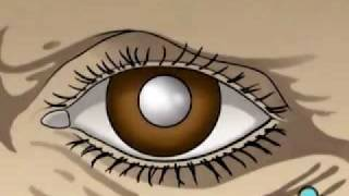 PreOp® Patient Education Cataract Small Incision Eye