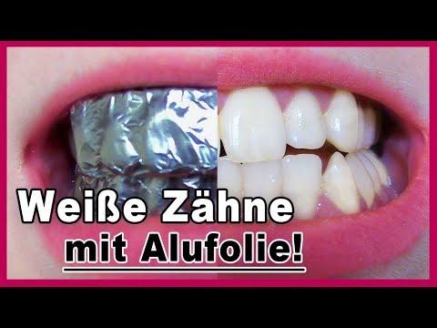 Zähne Aufhellen Mit Alufolie Es Funktioniert