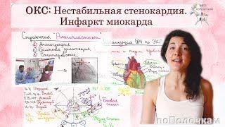 Острый коронарный синдром (ОКС): Инфаркт миокарда и нестабильная стенокардия