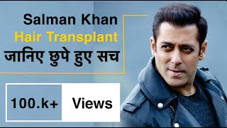 Salman khan Hair Transplant Video ( Interesting Insights)