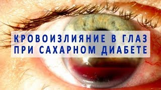 Диабет и кровоизлияния в глаз