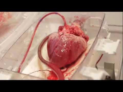 BLAST¡¡¡   HUMAN HEART ON 60Bmp  use Headphone