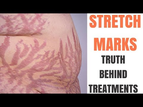 Best STRETCH MARK removal
