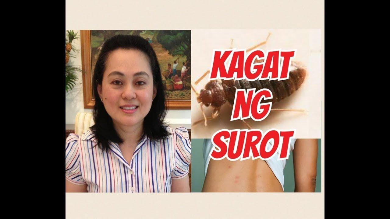 Kagat ng Surot - Payo ni Doc Liza Ong #263