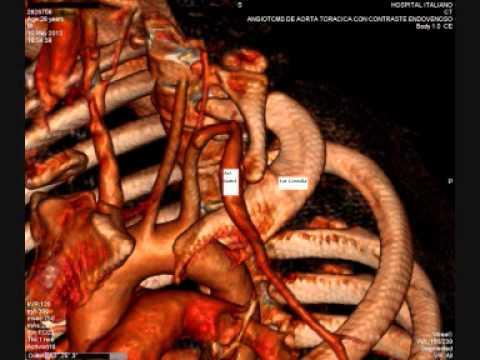 Sindrome del opérculo toracico - YouTube