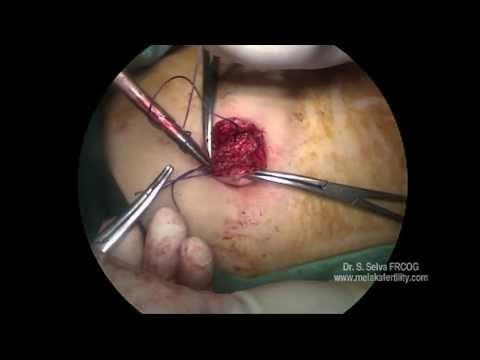 Single Incision Laparoscopic Surgery Using Common Laparoscopic Instruments