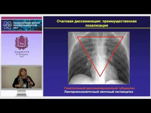 И.А. Соколина - Дифференциальная диагностика очагов и очаговой диссеминации легких