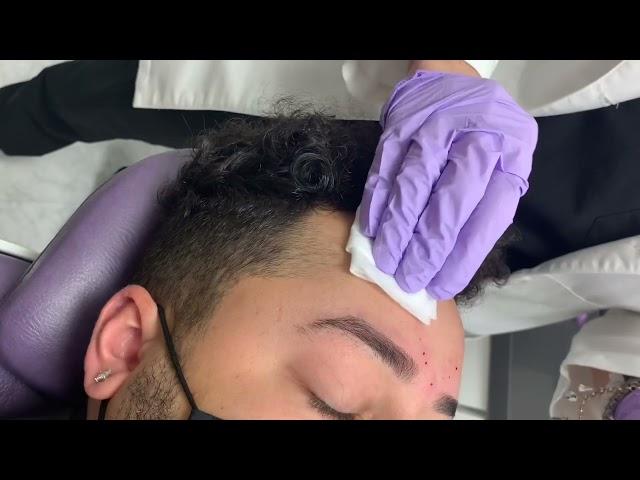 Non-Surgical Eyebrow Lift