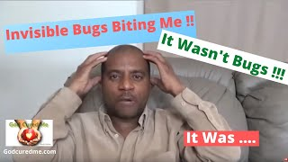 Invisible Bugs Biting me (it wasn