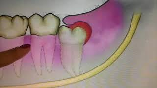 Medicação do anti-inchaço siso dentes