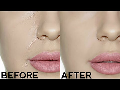How To Stop Foundation Creasing In Your Smile Lines Easy Tricks