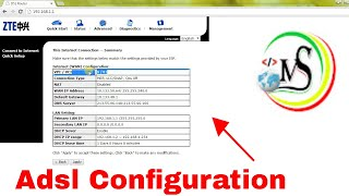 mS Best Tutorial  ZTE DSL Router  Configuration in Amharic