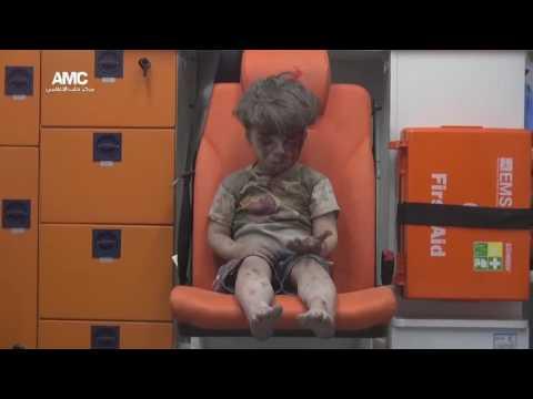 Bloody Syrian boy (5-year-old boy Omran Daqneesh) after an air raid in Aleppo