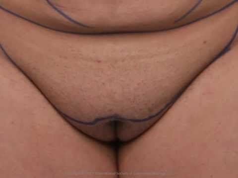 Masturbation genitals for men For vagina sex TOYS FOR HIM from YouTube · Duration:  1 minutes 46 seconds