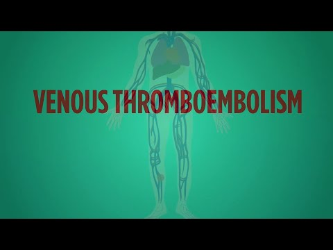 Venous Thromboembolism Explained in 60 Seconds