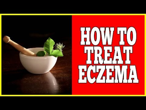 How To Treat Eczema – How To Treat Eczema With 2 Simple Techniques