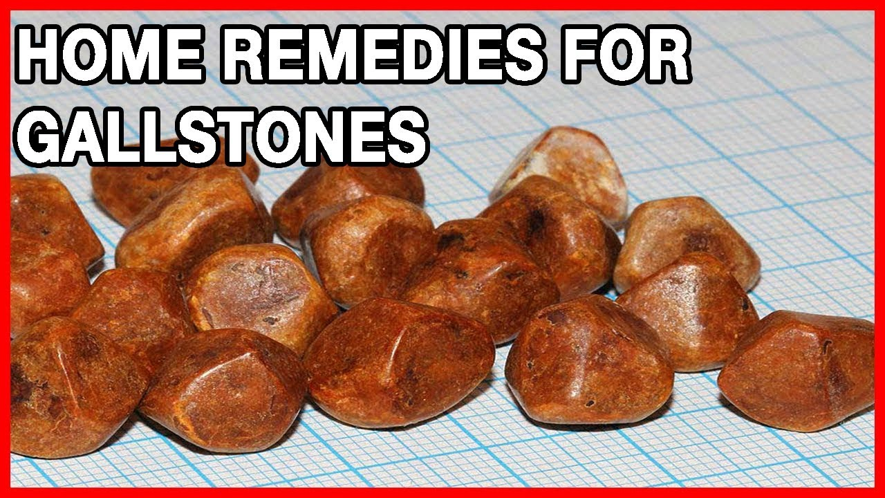 Gallstones Symptoms, Causes and Treatment - YouTube