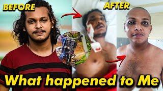 Accident സംഭവിച്ച കിച്ചുവിന്റെ ഇപ്പോഴത്തെ അവസ്ഥ | Thank you everyone | KL Prank Accident