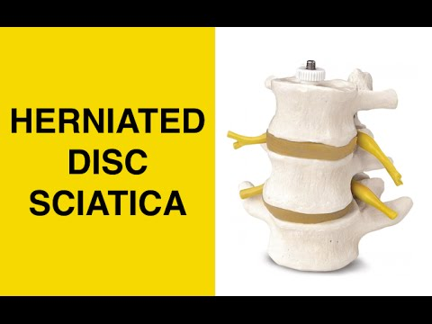 hqdefault - Sciatica Nerve Treatment Options