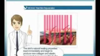 รักษารูขุมขนกว้างแนวใหม่ด้วย MOSAIC Thumbnail