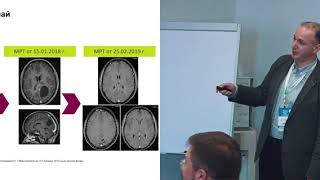 Смотреть видео Противоопухолевое лечение церебральных метастазов солидных опухолей. Насхлеташвили Д.Р. (Москва) онлайн