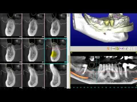 Хирургические шаблоны - Планирование операции по имплантации зубов
