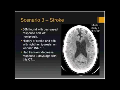 Global Grand Rounds: Acute Stroke Therapy presented by Karl E. Misulis, MD, PhD