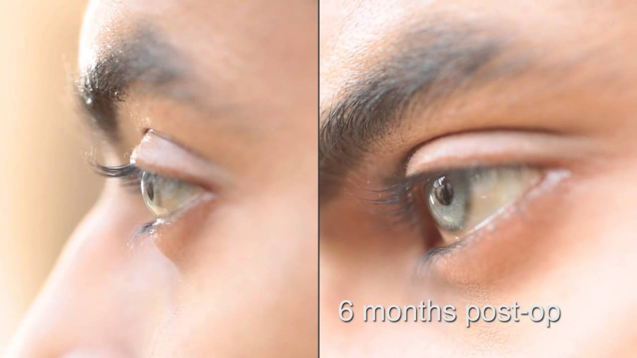 Permalink to Eye Color Change Surgery