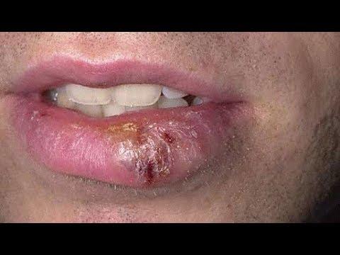 衝撃口唇ヘルペスがたった1日で治る 驚愕のスゴ技10の撃退方法がヤバイ 今時のおもしろ撃退術wwwtwitterで話題