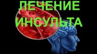 Лечение инсульта: 95 % успеха