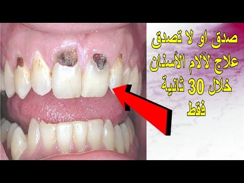 أفضل طريقة للتخلص من الام الاسنان خلال 30 ثانية في المنزل لن تصدق كيف شاهد بنفسك Youtube
