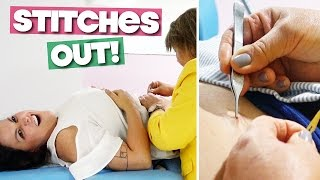 REMOVING STITCHES AFTER LAPAROSCOPIC SURGERY!