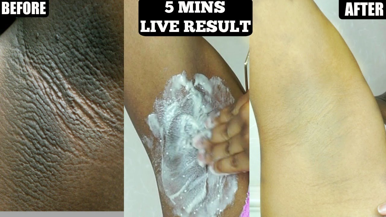 In 5 Minutes Lighten Dark Underarms Naturally And Permanently Youtube
