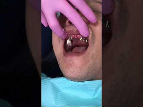 Upper all on 8 dental implant - #9