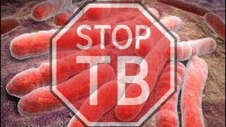 Tuberculosis (TB) Most lethal infectious disease in the world