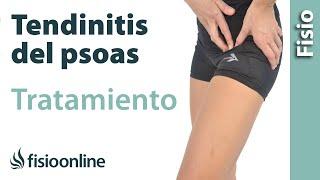 Tendinitis del psoas o psoitis - Tratamiento con ejercicios, automasajes y estiramientos