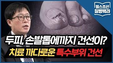 [특수부위 건선] 건선 환자의 손발톱 변형...