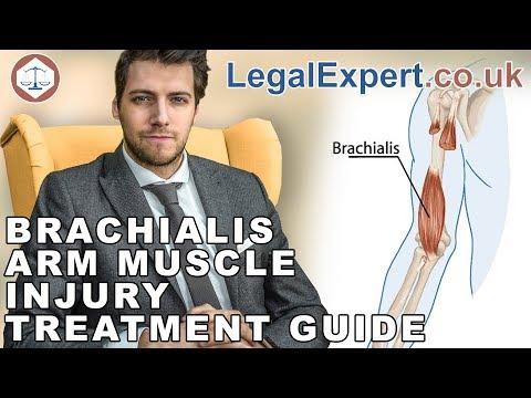 Brachialis Arm Muscle Injury Treatment Guide ( 2019 ) UK
