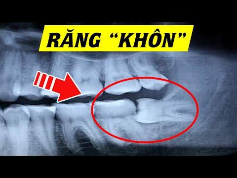 Răng khôn - Răng số 8 có gì đặc biệt? Hiểu rõ trong 5 phút
