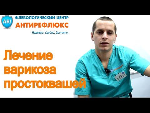 Лечение варикоза в домашних условиях народными средствами ...