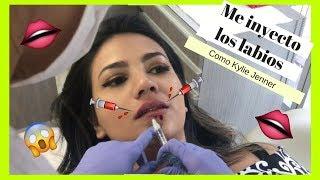 Inyecciones De Labios 👄 con ácido hialurónico en CHILE ♥ les muestro el procedimiento CONSUX
