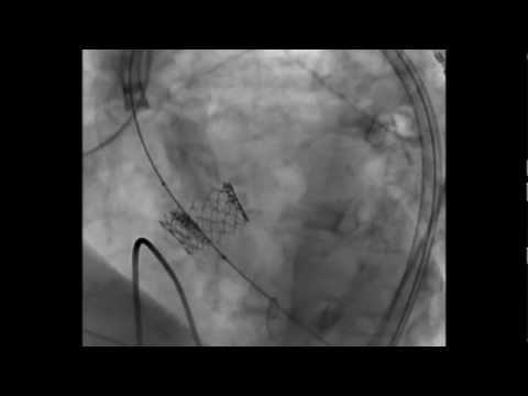 Edwards SAPIEN Transcatheter Heart Valve Deployment - TAVR