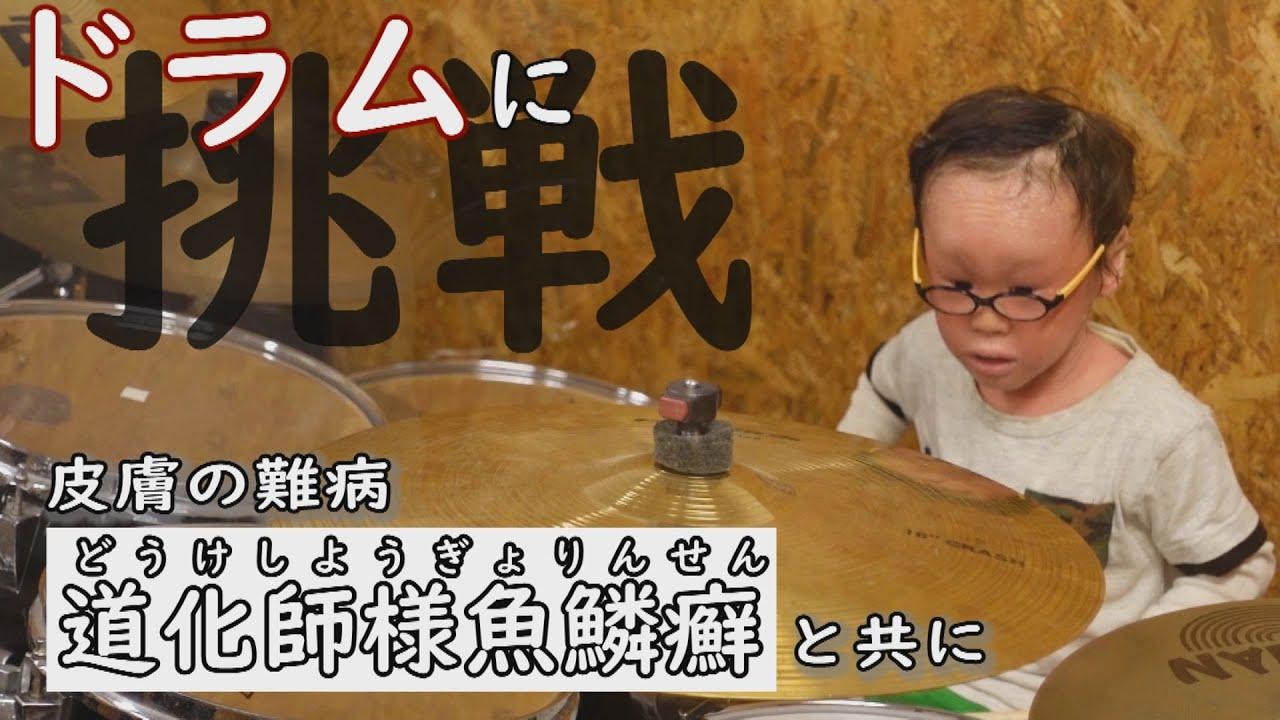 魚鱗 道化師 漂白剤のお風呂に週に2回 道化師様魚鱗癬と闘う1歳児(米)