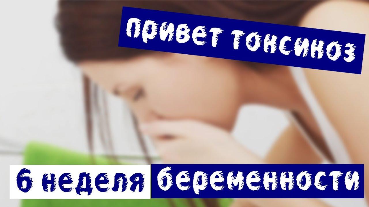 Шестая беременность смотреть онлайн