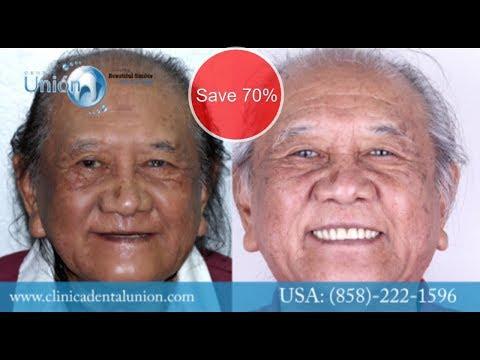 ⭐⭐⭐⭐⭐ -all-on-four- -dental-implants-cost-tijuana-mexico- -real-testimonials- -2019