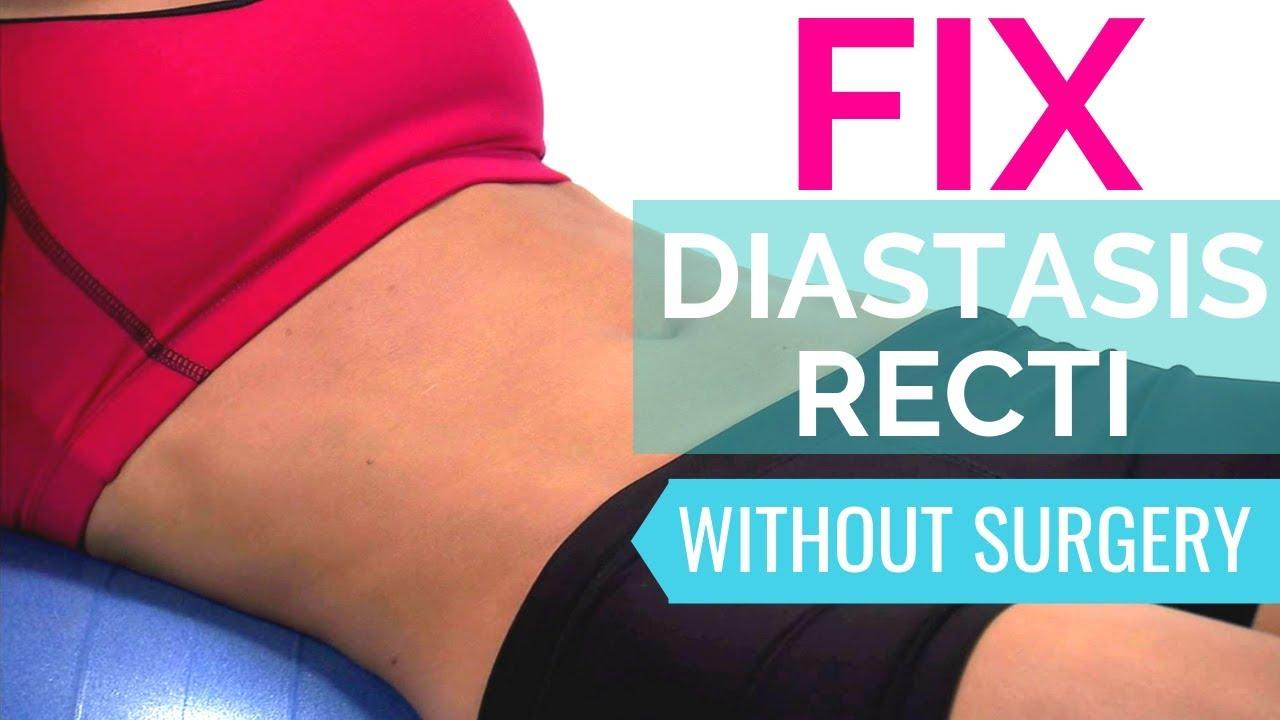 How To Fix Diastasis Recti Heal Diastasis Recti Naturally Without Surgery Youtube