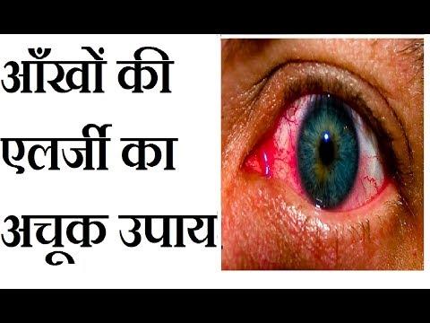 आँखों की एलर्जी को दूर करने के अचूक उपाय | eye allergy treatment in hindi | आंखों की एलर्जी का इलाज